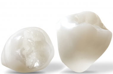 On the Rise: High-Translucency Zirconia, Digital Metal and Monolithic